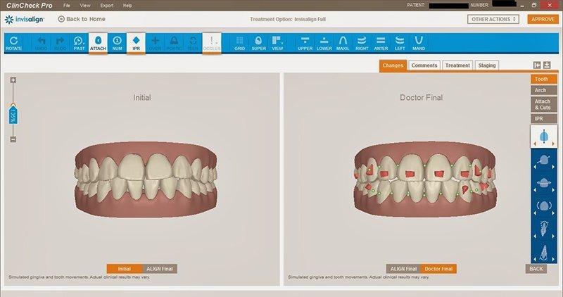 programa ortodoncia invisalign