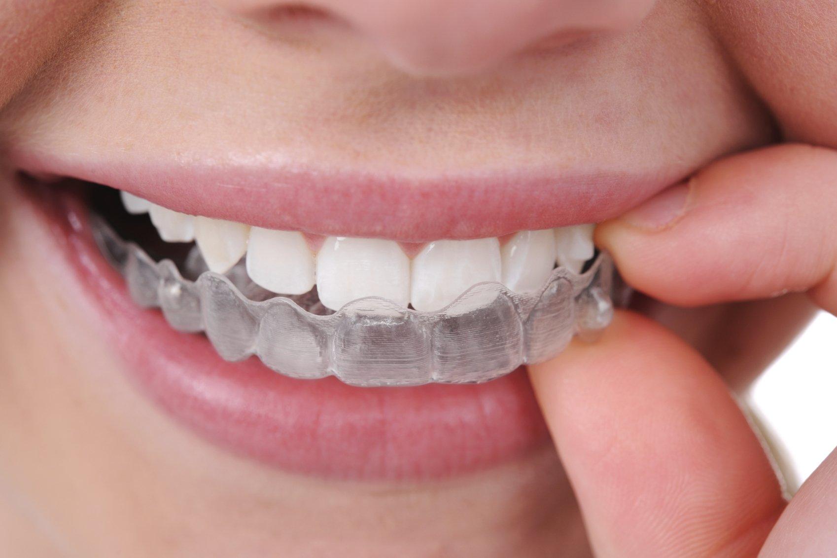 Ortodoncia con Invisalign tratamiento