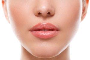Relleno de labios y arrugas ácido hialurónico