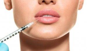 clinicasrodriguezalacreu-relleno-labios-arrugas-acido-hialuronico-705×470