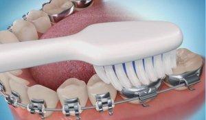 dientes-amarillos-higiene-oral-con-ortodoncia-768×499