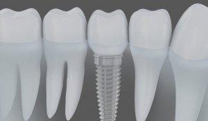 implantes-dentales-alcudia-sedavi-1030×773