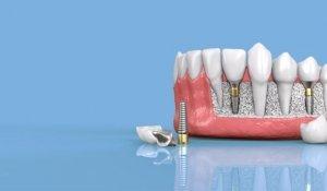 implantes_dentales1-768×384