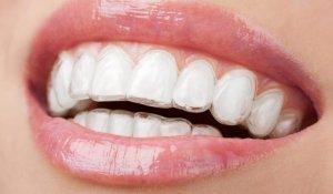 ortodoncia-con-invisalign-ventajas-1024×536