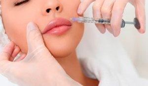 relleno-labios-acido-hialuronico-768×432