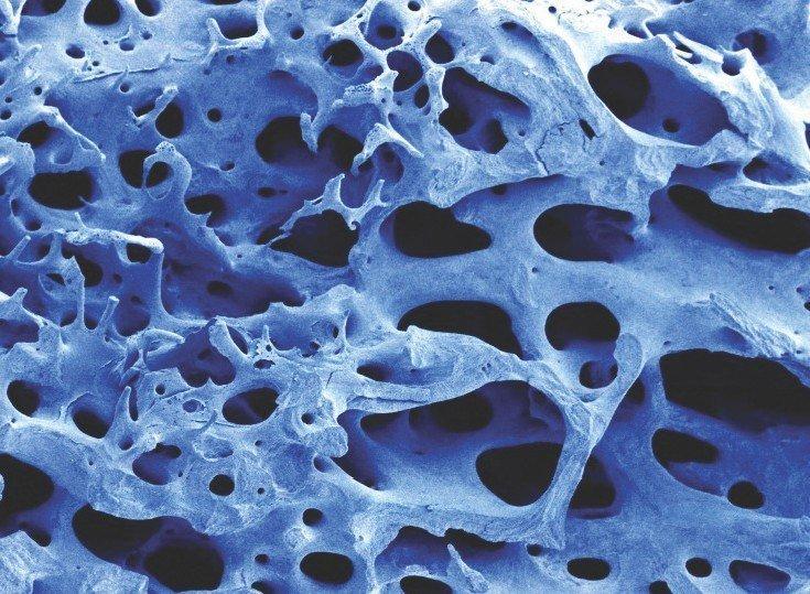 bifosfonatos osteoporosis