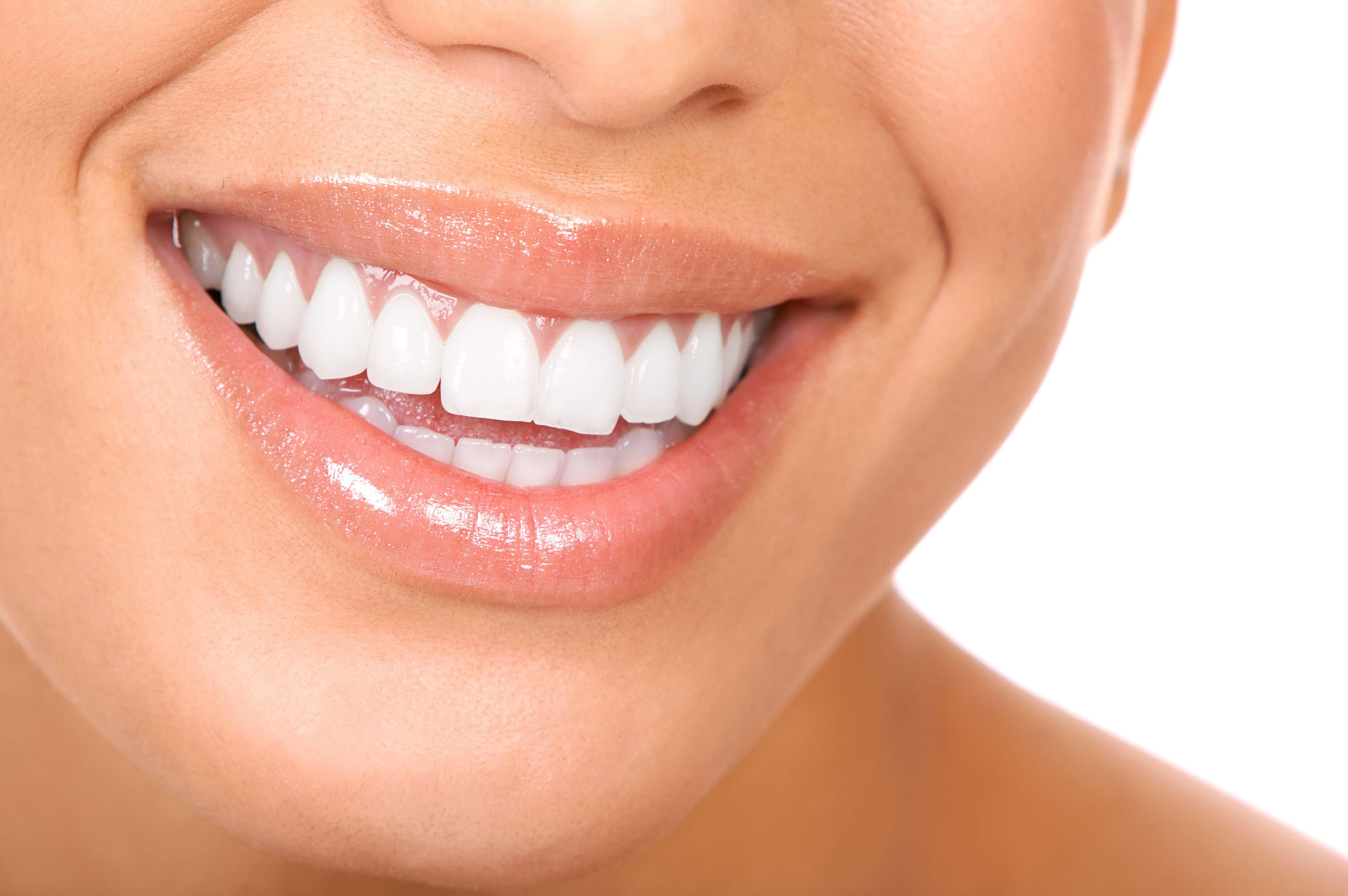 blanqueamiento dental aspectos