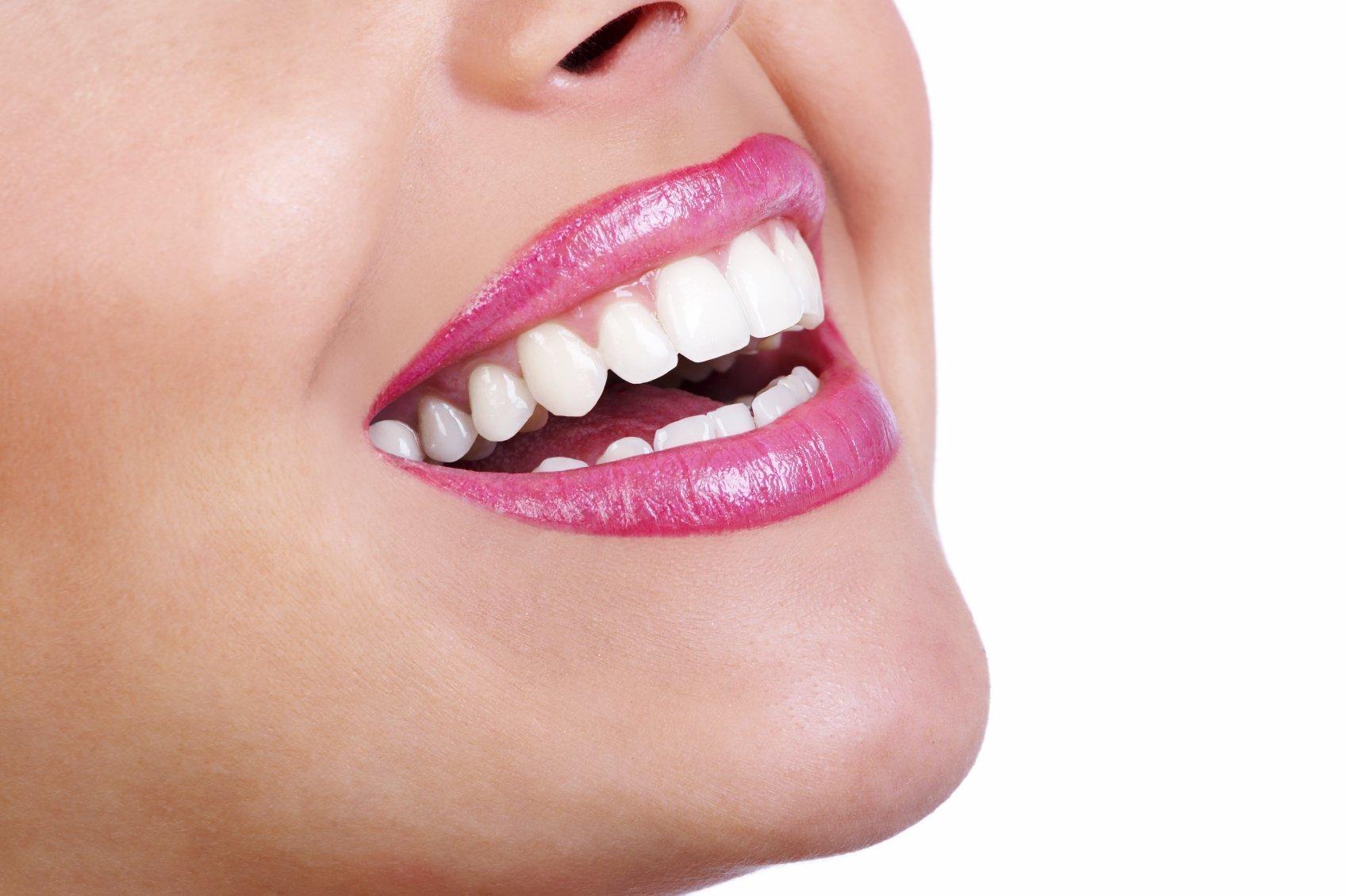 blanqueamiento dental beneficios