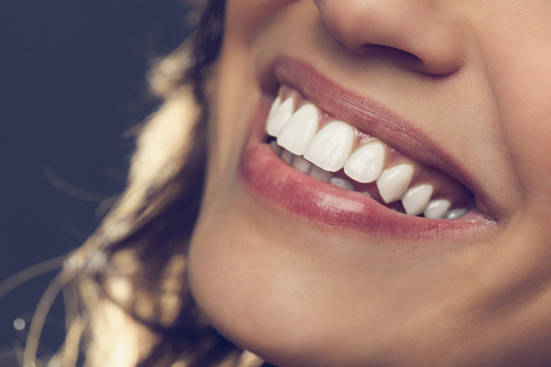 blanqueamiento dental portada