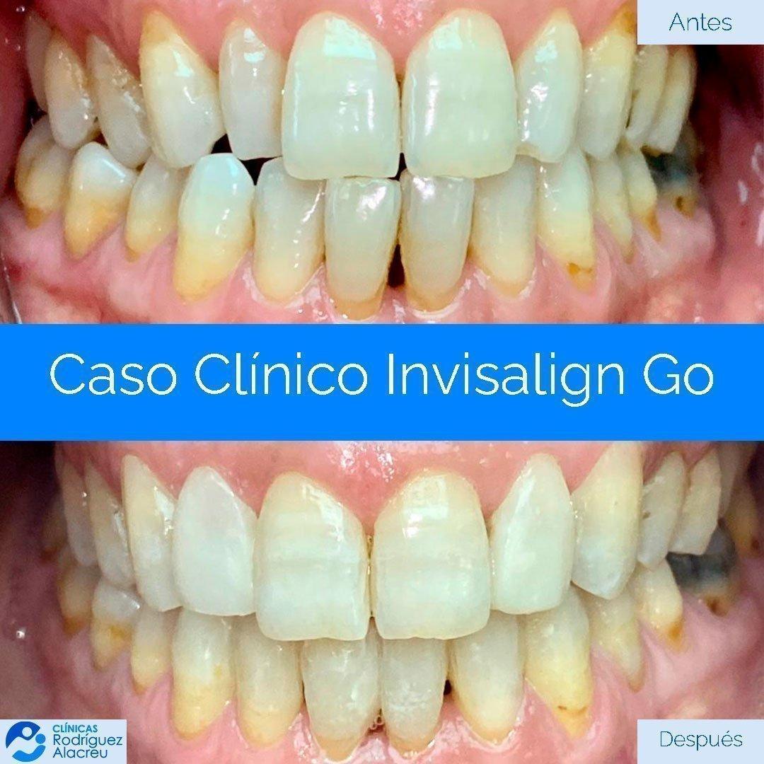 caso-clinico-invisalign03