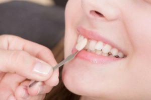 Carillas dentales: cómo saber qué tipo me conviene más