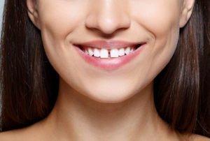 Diastema dental