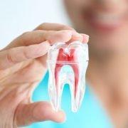 Cuándo realizar una endodoncia