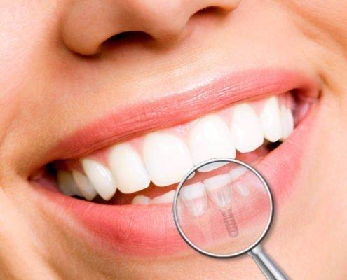 Implantes dentales en Sedaví y L'Alcudia