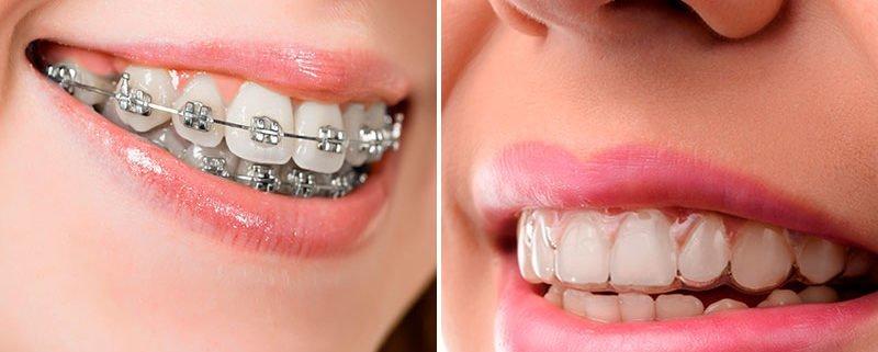 Tipos de ortodoncia: cuál elegir