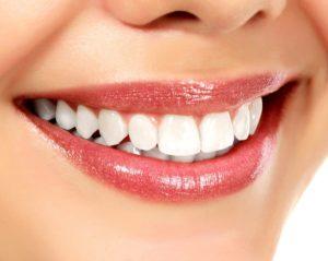 dientes amarillos blanqueamiento dental