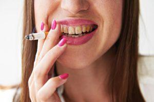 dientes amarillos causas y tratamientos