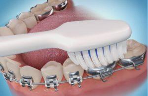 dientes amarillos higiene oral con ortodoncia