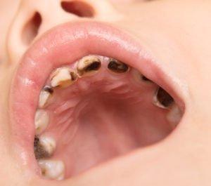 halitosis caries