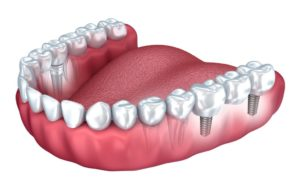 implantes dentales antiguos