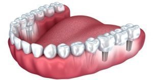 implantes-20-b-1024×639-710×375