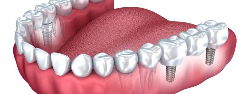 implantes dentales antiguos