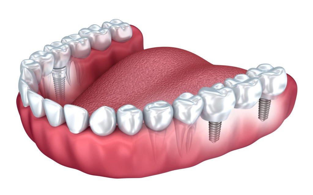Son Seguros Los Implantes Dentales Clinica Dental Sedavi