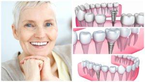 implantes dentales funcionalidad y ventajas