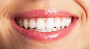implantes dentales patente uji