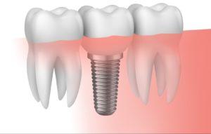 implantes dentales portada