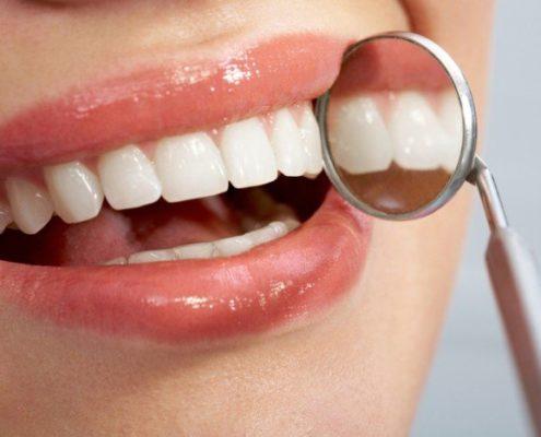 Manchas blancas dientes