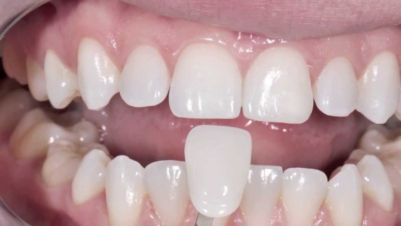 Carillas Sin Tallado Y Estética Dental Clínica Dental En Sedaví Valencia