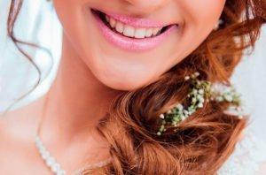 mejorar la sonrisa antes de la boda