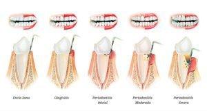 periodoncia gingivitis periodontitis