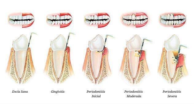 la periodoncia gingivitis periodontitis
