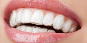 sonrisa ortodoncia invisalign